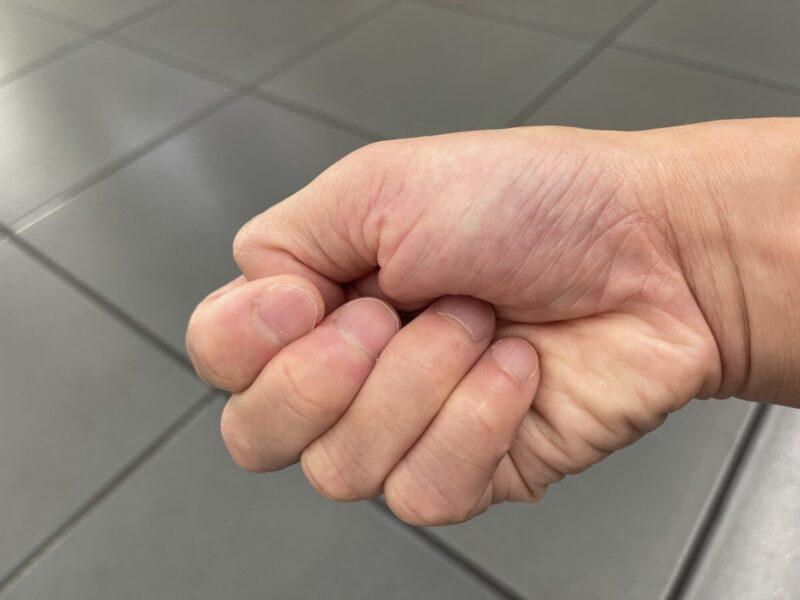 手の拘縮した状態